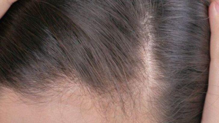 Saçkıran tedavisi nasıl yapılır? Saçkıran ne kadar sürede geçer?